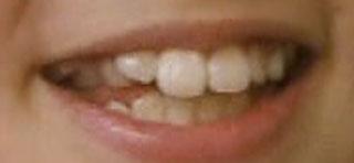 鈴木梨央 前歯