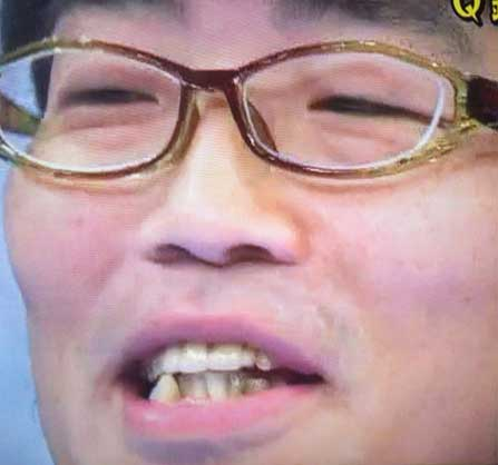 鈴木拓 小さな歯