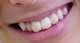 高野洸 前歯