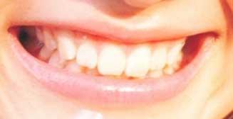 戸松遥の前歯の写真