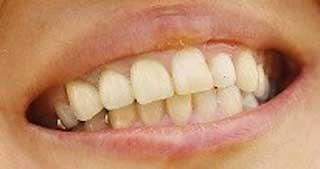 上田桃子 前歯 入れ歯