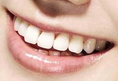 ユリ (少女時代) 前歯の写真