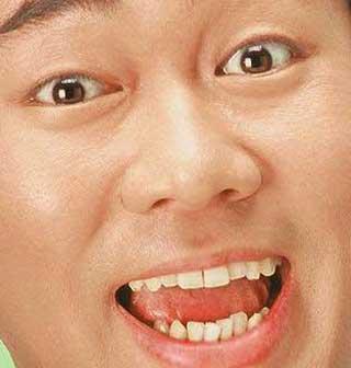 ビビる大木 前歯の写真
