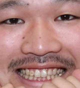 長谷川俊輔 クマムシ 前歯の写真