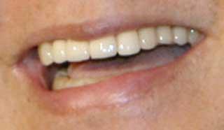 加藤茶 前歯