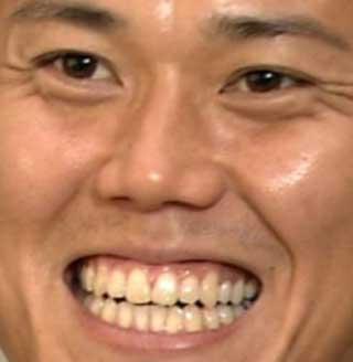 川島永嗣 前歯