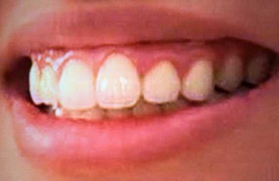 宮地真緒 18歳の頃の前歯