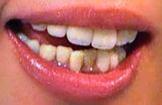 宮地真緒 下の歯