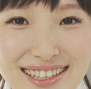 南條愛乃 前歯の写真