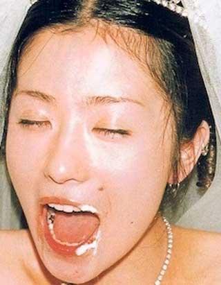 椎名林檎 銀歯