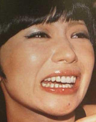 椎名林檎 前歯の写真