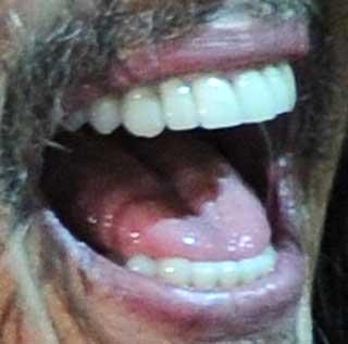 スティーヴン・タイラー 前歯の写真