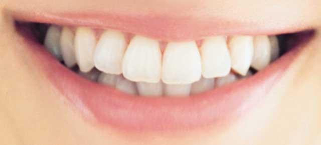 高垣麗子 前歯の写真