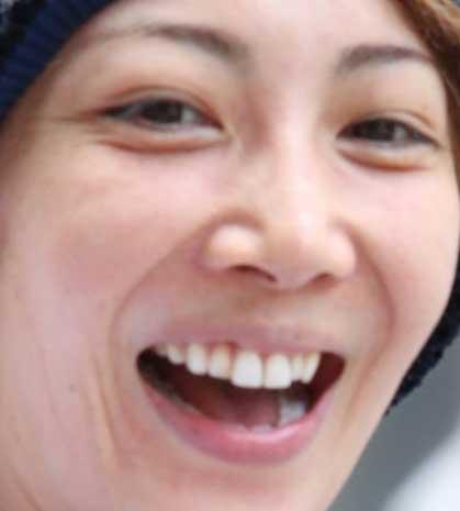柚希礼音 ビーバー歯