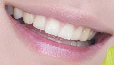 JUNSU ジュンス 前歯の写真