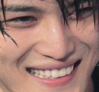 Jejung ジェジュン 前歯の写真