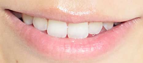 福田彩乃 前歯の写真