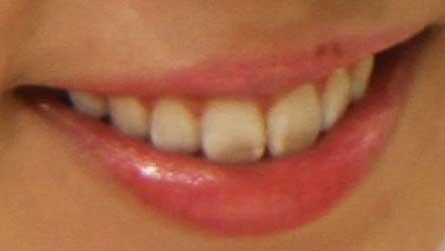 飯田里穂 歯の写真