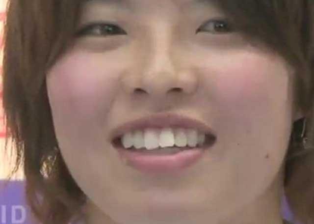 熊谷紗希 歯