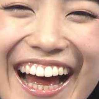 miwa 前歯