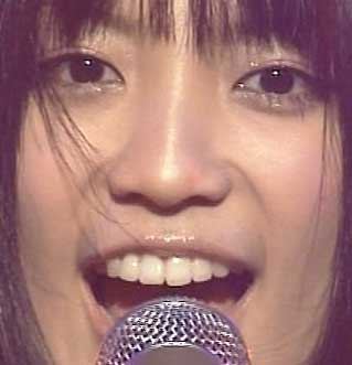 miwa 歯の写真