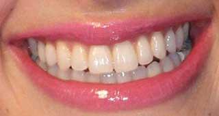 森星の前歯の写真