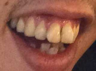 森田哲矢 前歯の写真