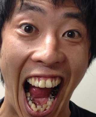 森田哲矢 銀歯