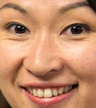 小渕優子の前歯の写真
