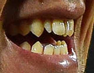 岡崎慎司 前歯の写真