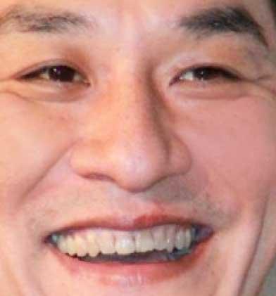 ピエール瀧 前歯