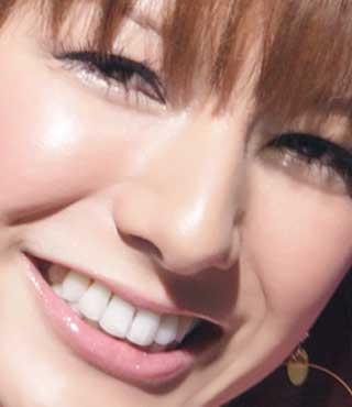 スザンヌ 前歯の写真
