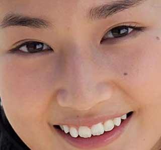 高嶋香帆 前歯の写真
