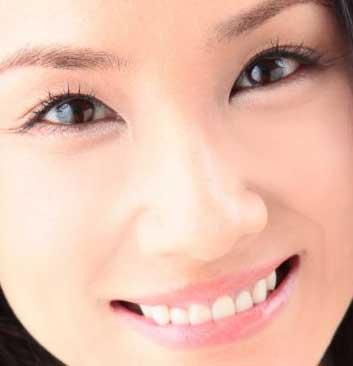 吉田羊 前歯の写真