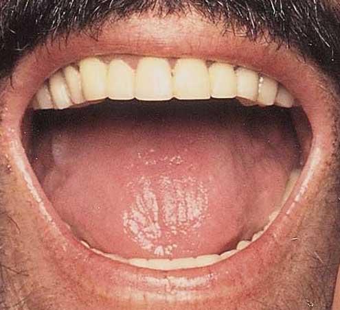 ルチアーノ・パヴァロッティ 前歯の写真