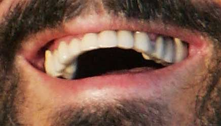 Pavarotti tooth