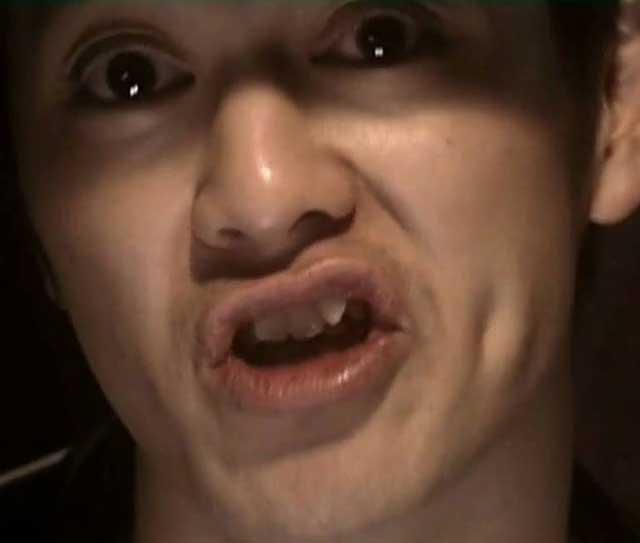 ラッパー 般若 歯