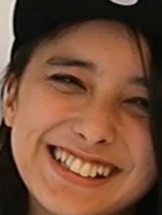 石田ニコル 歯