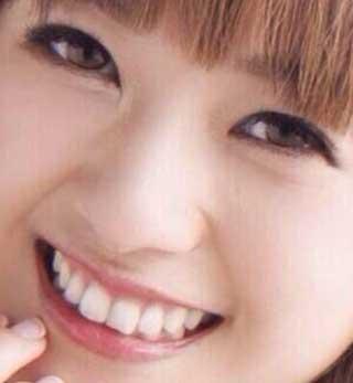伊藤千晃 前歯の写真