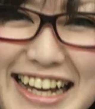 喜多村英梨 前歯の写真