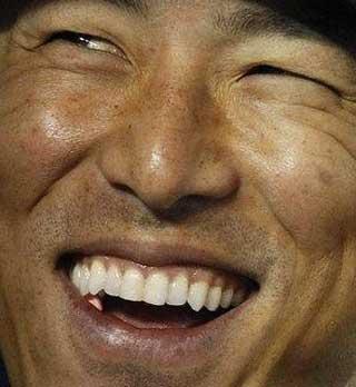 黒田博樹 前歯の写真