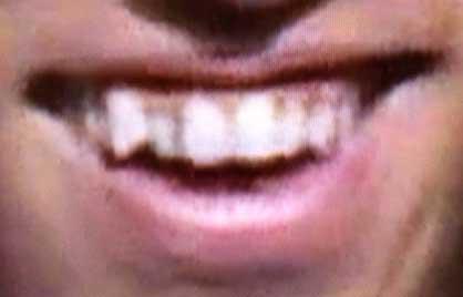 黒田博樹 八重歯