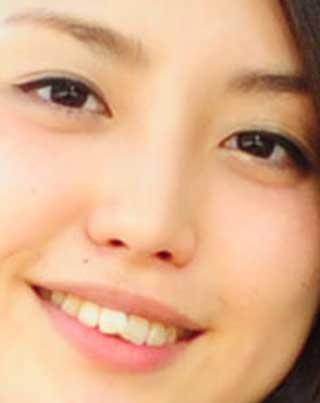 宮司愛海 曲がった前歯の写真