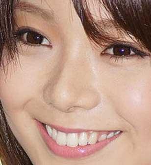 森カンナ 歯の写真