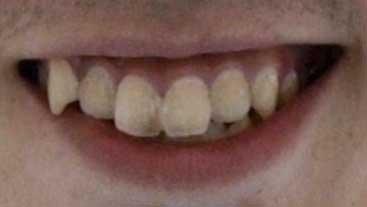 無良崇人 前歯の写真