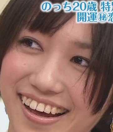 大本彩乃 虫歯