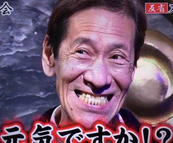 斉藤洋介 しゃくれ