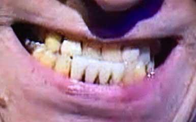斉藤洋介の前歯の写真