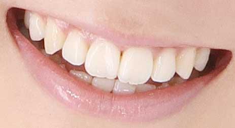 谷村美月 前歯 差し歯