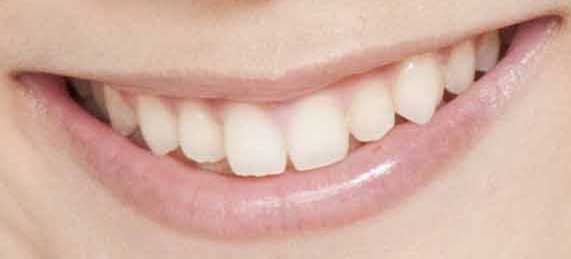 津田美波 前歯の写真